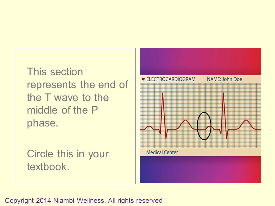 This section represents the end of the T wave to the middle of the P phase.