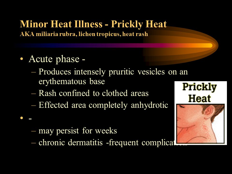 Heat Exhaustion - two types classically described –Water depletion heat exhaustion inadequate fluid replacement by persons in heat voluntary dehydration weakness, fatigue, frontal headache, impaired judgement, vertigo, nausea/vomiting, occasional muscle cramps,sweating, body temperature near normal orthostatic dizziness/syncope may occur results in progressive hypovolemia Untreated can progress to heat stroke