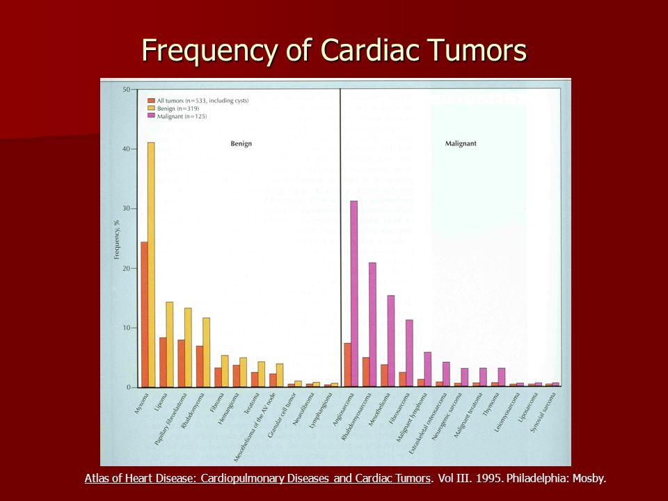 Frequency of Cardiac Tumors Atlas of Heart Disease: Cardiopulmonary Diseases and Cardiac Tumors. Vol III. 1995. Philadelphia: Mosby.