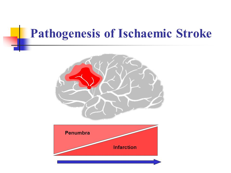 Pathogenesis of Ischaemic Stroke Penumbra Infarction