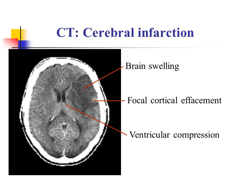 CT: Cerebral infarction Brain swelling Ventricular compression Focal cortical effacement