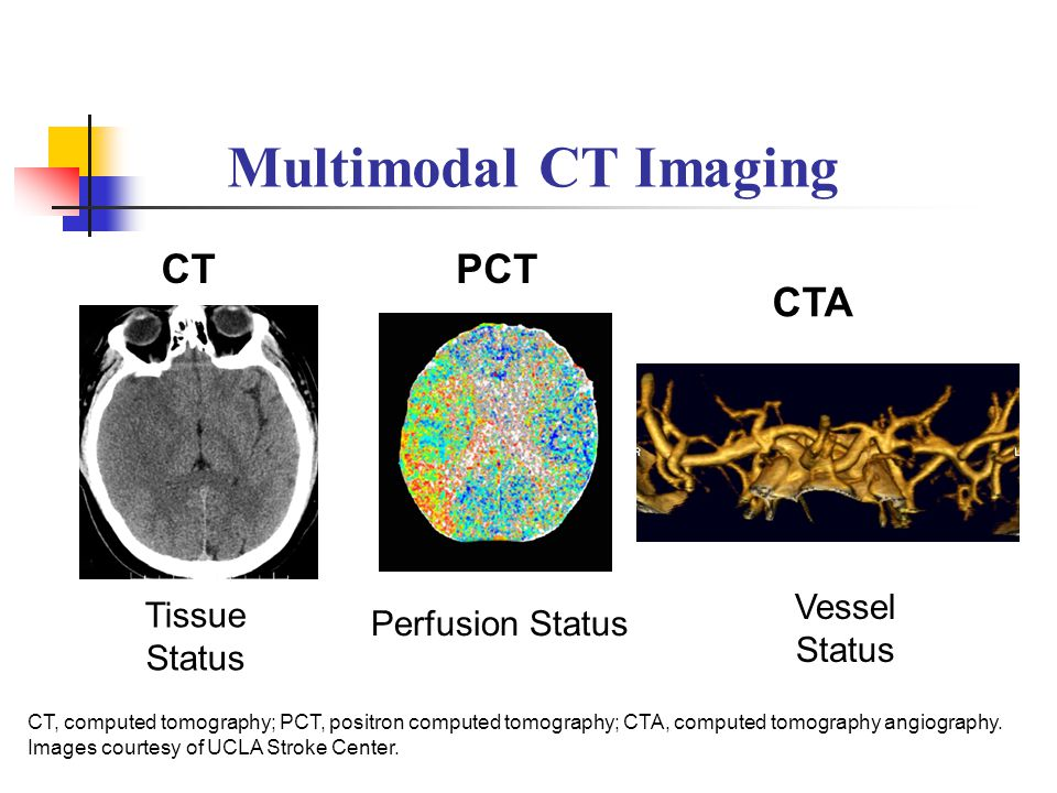 Multimodal CT Imaging Perfusion Status CTPCT CTA CT, computed tomography; PCT, positron computed tomography; CTA, computed tomography angiography. Ima
