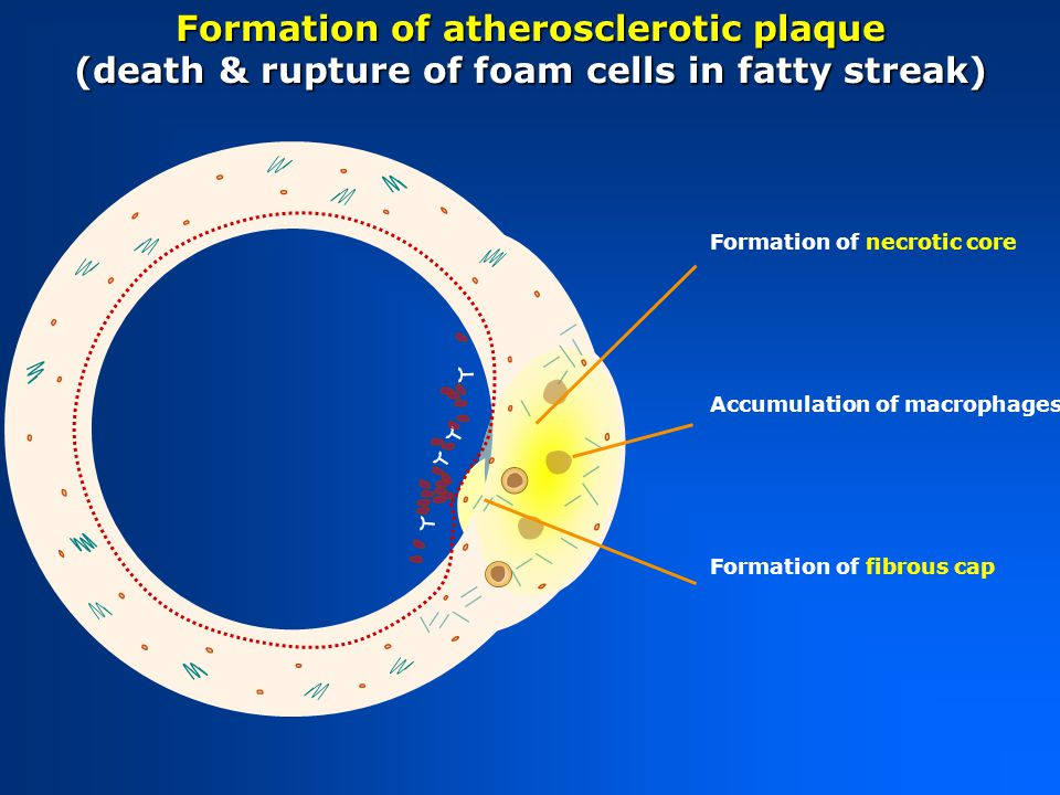 Formation of fibrous cap Accumulation of macrophages Formation of necrotic core Formation of atherosclerotic plaque (death & rupture of foam cells in fatty streak)