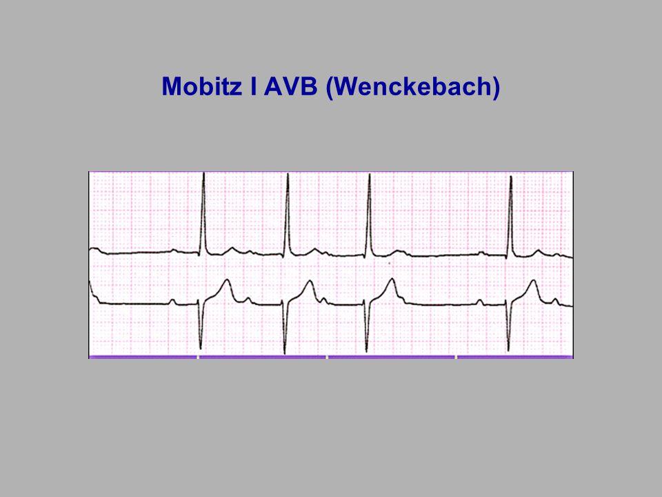 Mobitz I AVB (Wenckebach)