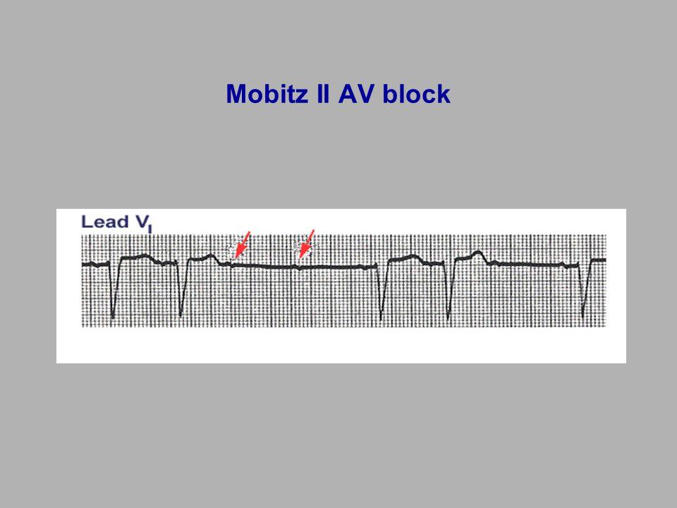 Mobitz II AV block