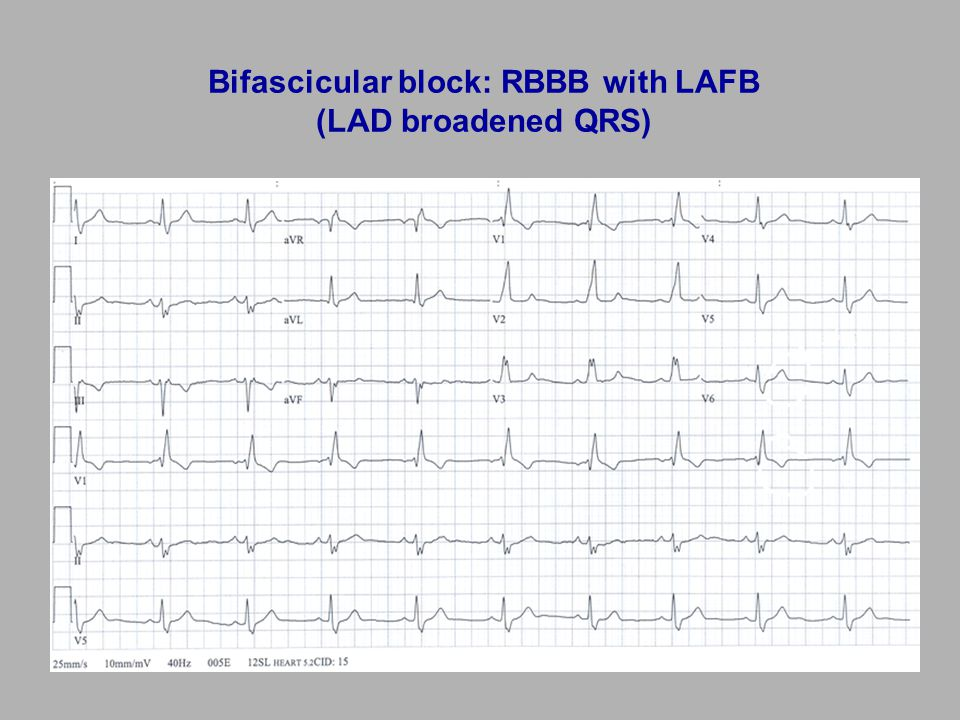 Bifascicular block: RBBB with LAFB (LAD broadened QRS)