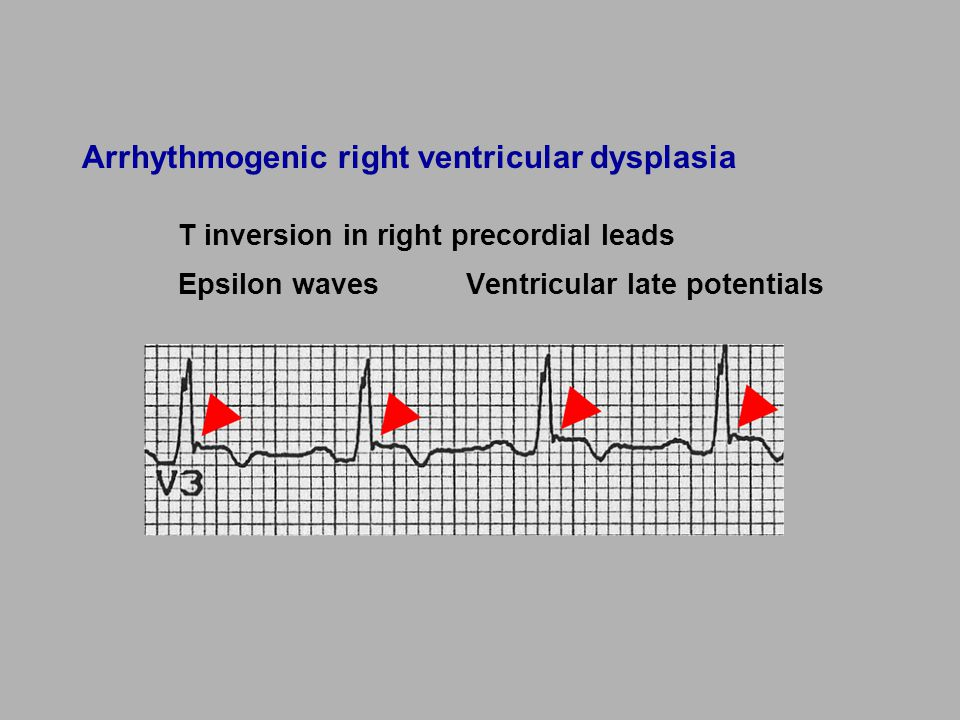 Arrhythmogenic right ventricular dysplasia T inversion in right precordial leads Epsilon wavesVentricular late potentials