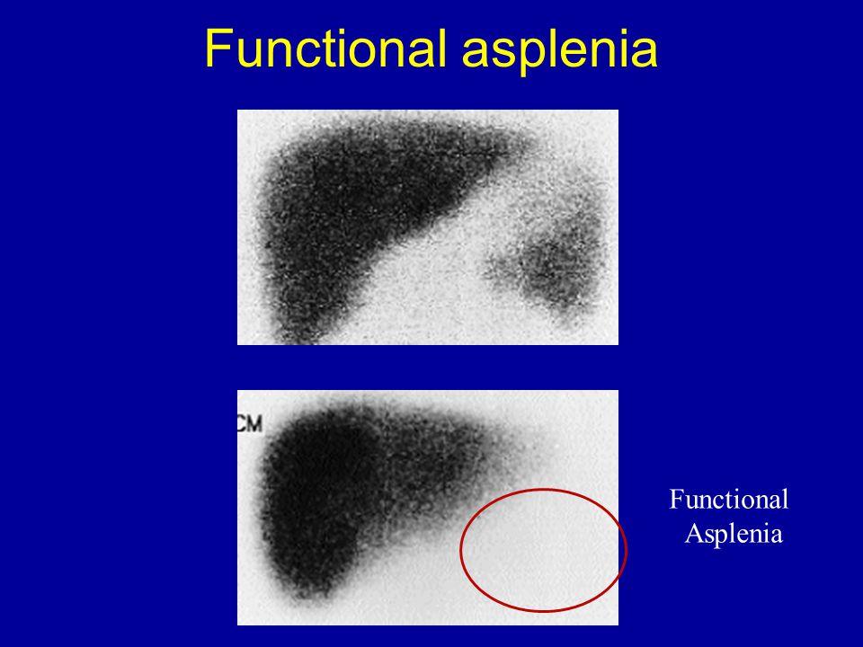 Functional Asplenia Functional asplenia