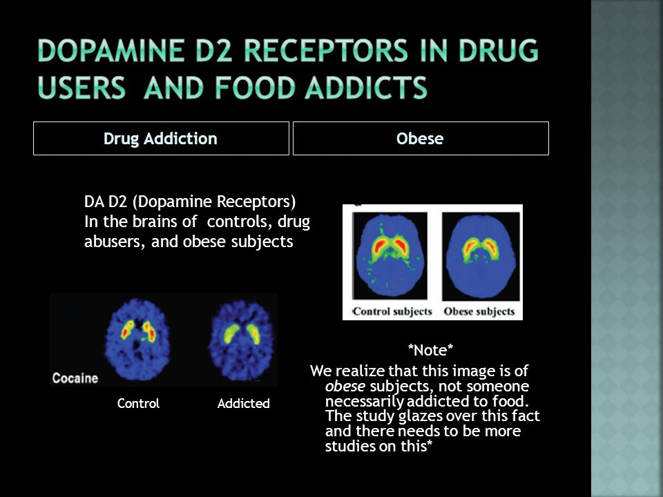 Drug AddictionObese *Note* We realize that this image is of obese subjects, not someone necessarily addicted to food.