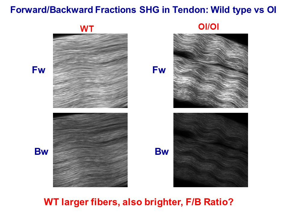 WT OI/OI Fw Bw Fw Bw Forward/Backward Fractions SHG in Tendon: Wild type vs OI WT larger fibers, also brighter, F/B Ratio?