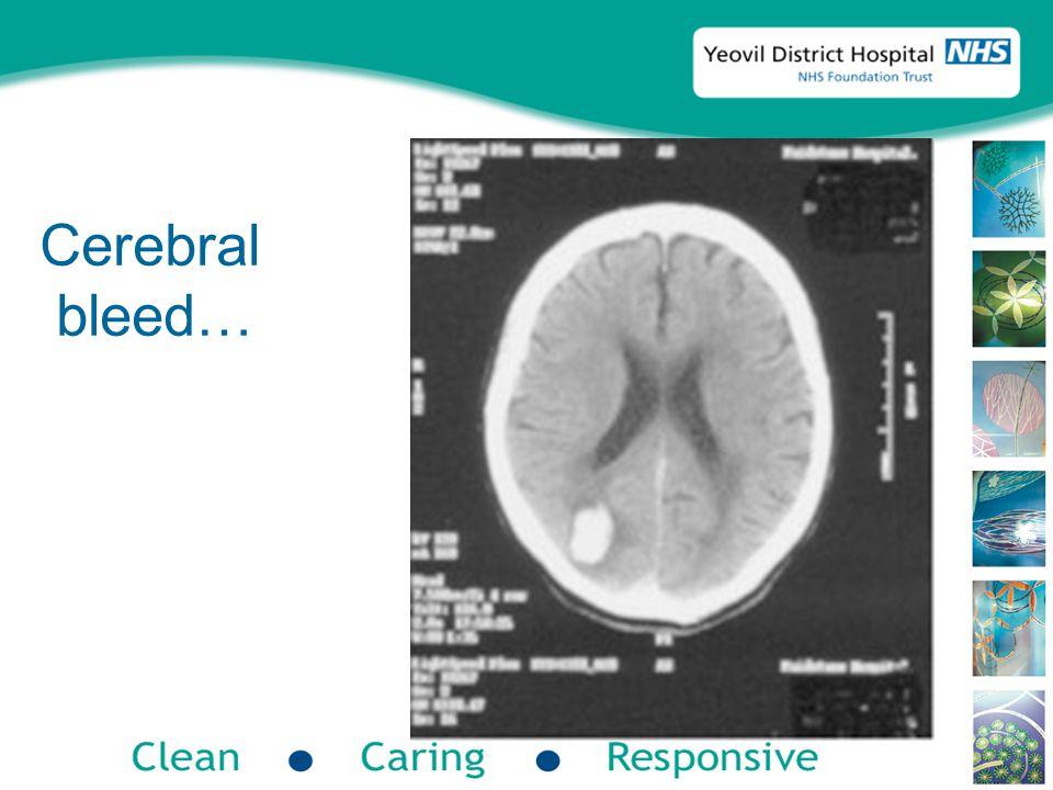 Cerebral bleed…
