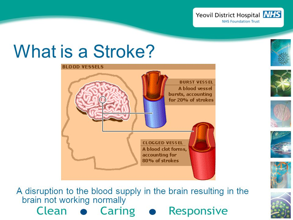 Types of Stroke IschaemicHaemorrhagic