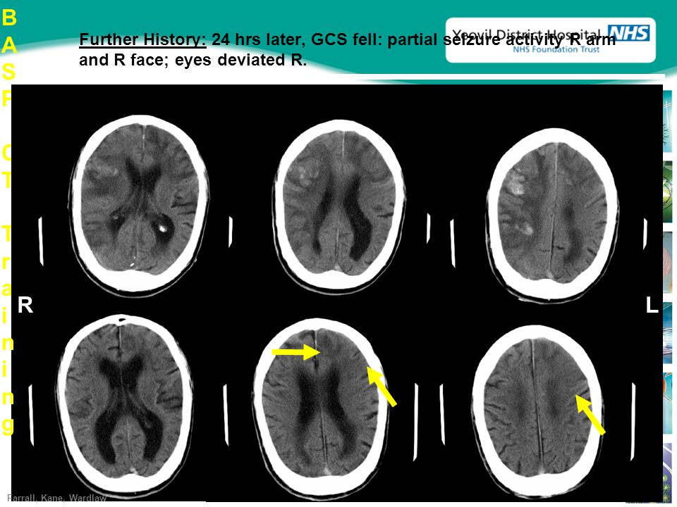Further History: 24 hrs later, GCS fell: partial seizure activity R arm and R face; eyes deviated R.