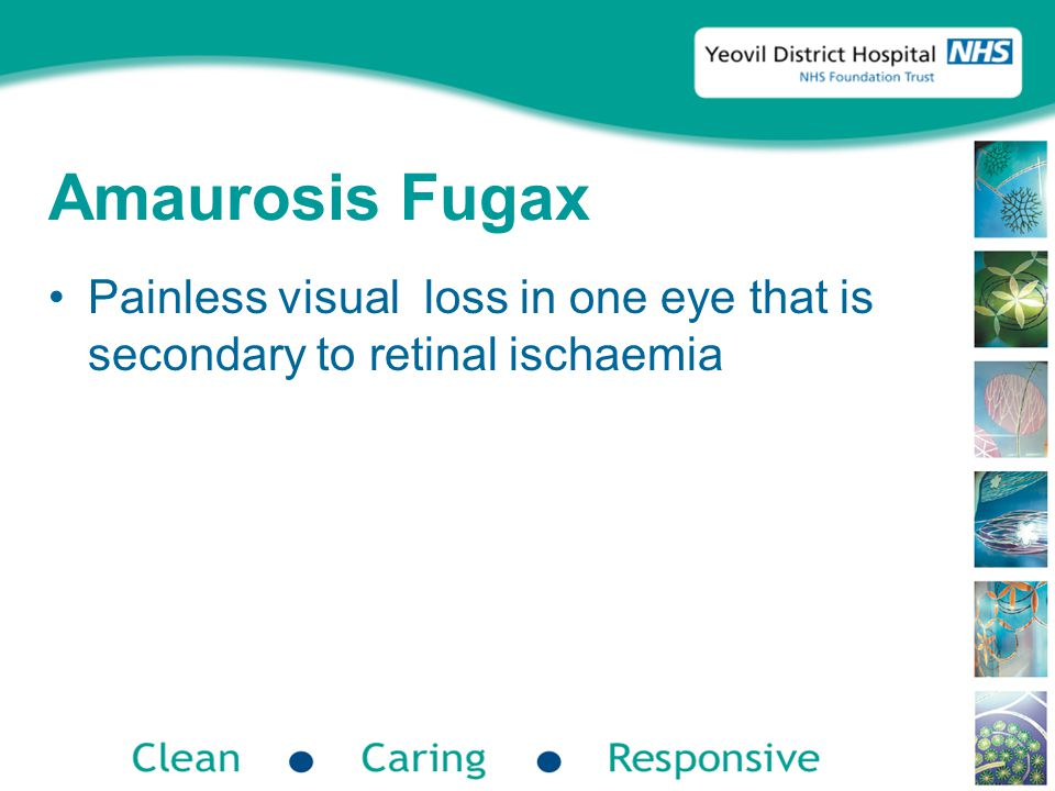 Amaurosis Fugax Painless visual loss in one eye that is secondary to retinal ischaemia