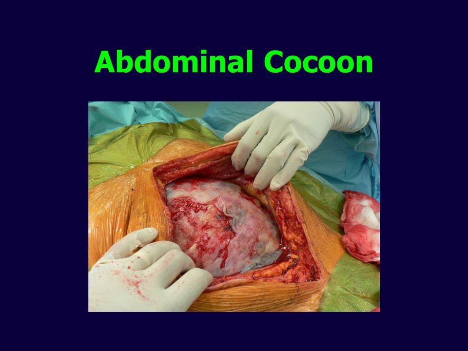 Abdominal Cocoon