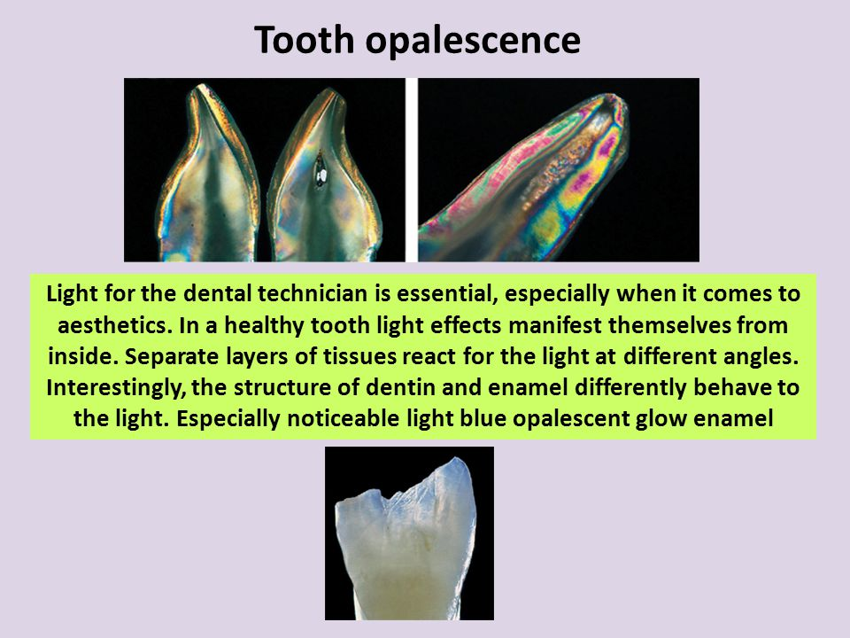 Tooth opalescence Light for the dental technician is essential, especially when it comes to aesthetics. In a healthy tooth light effects manifest them