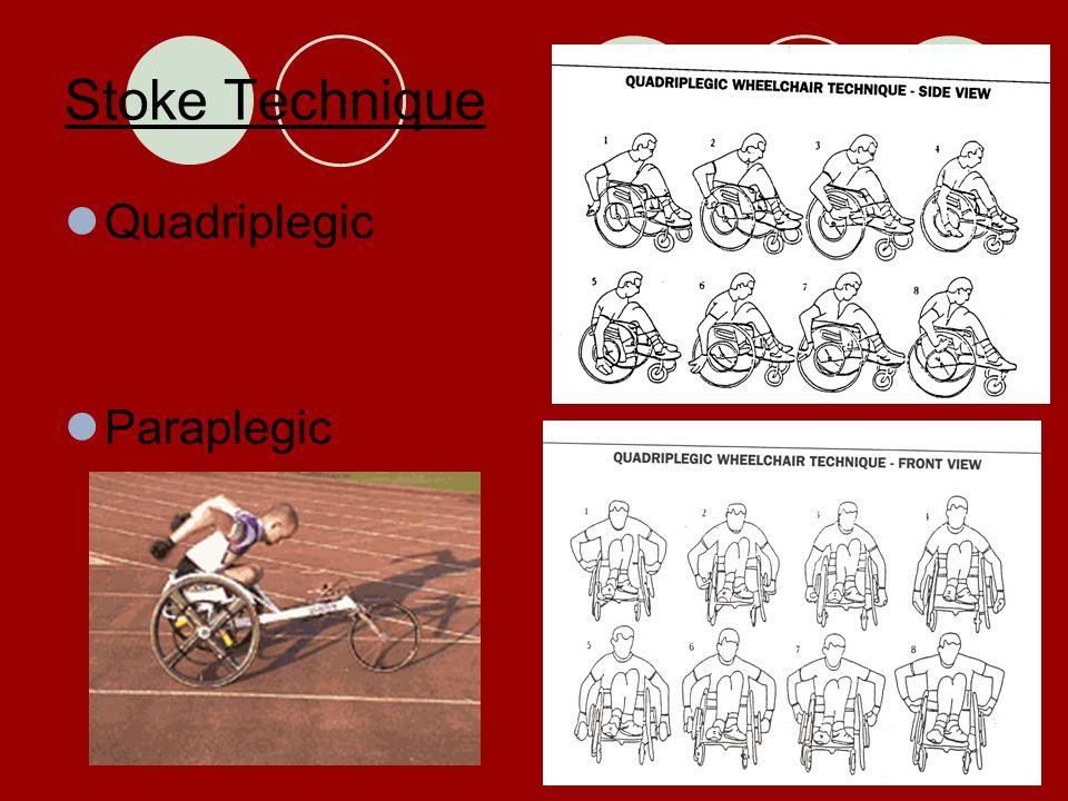 Stoke Technique Quadriplegic Paraplegic