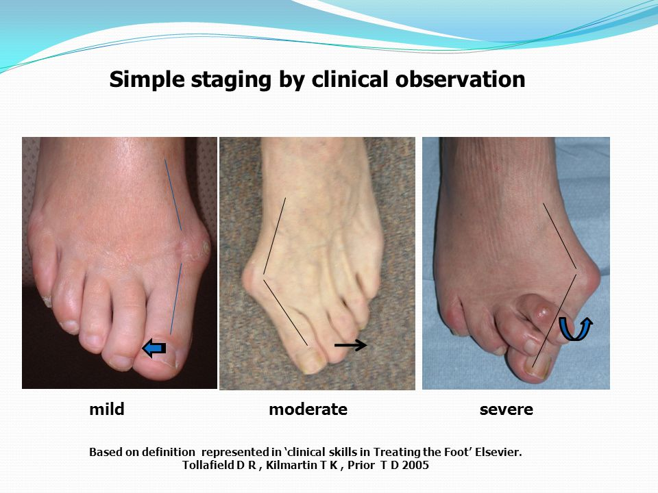 Based on definition represented in 'clinical skills in Treating the Foot' Elsevier. Tollafield D R, Kilmartin T K, Prior T D 2005 Simple staging by cl