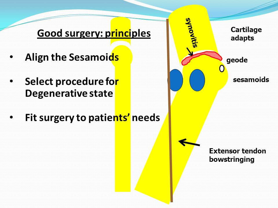 synovitis Good surgery: principles Align the Sesamoids Select procedure for Degenerative state Fit surgery to patients' needs Extensor tendon bowstringing Cartilage adapts sesamoids geode