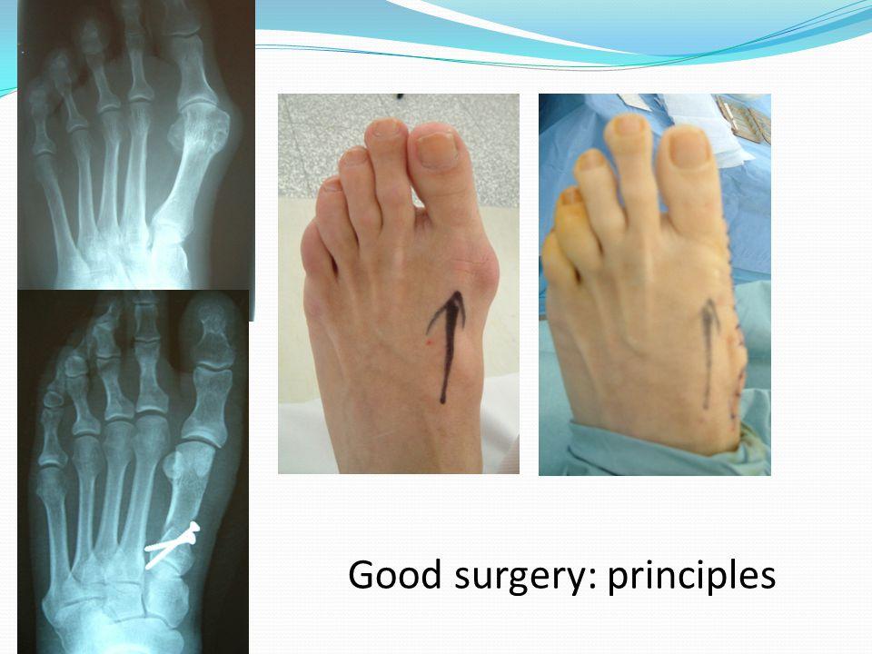 Good surgery: principles
