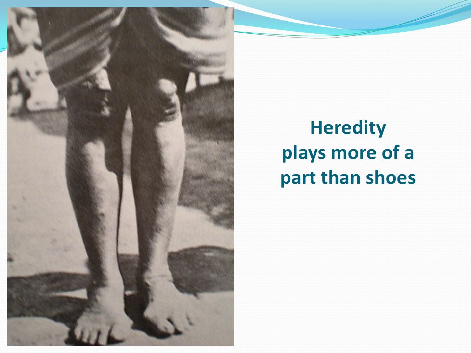 Heredity plays more of a part than shoes