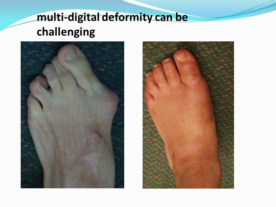 multi-digital deformity can be challenging