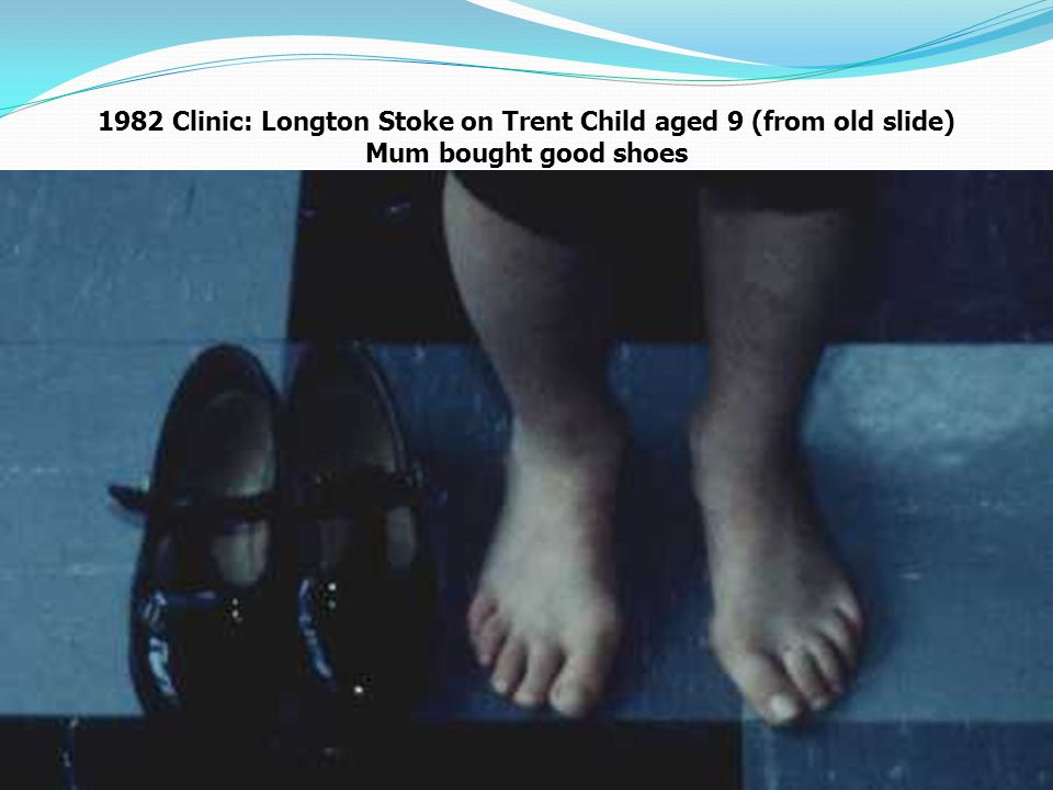 1982 Clinic: Longton Stoke on Trent Child aged 9 (from old slide) Mum bought good shoes