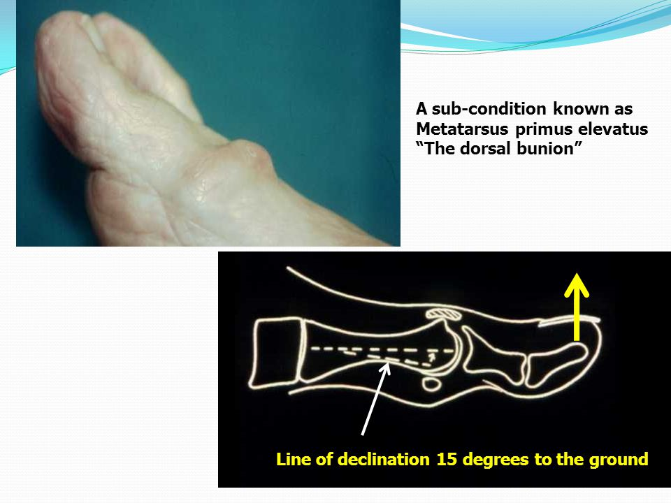 """A sub-condition known as Metatarsus primus elevatus """"The dorsal bunion"""" Line of declination 15 degrees to the ground"""