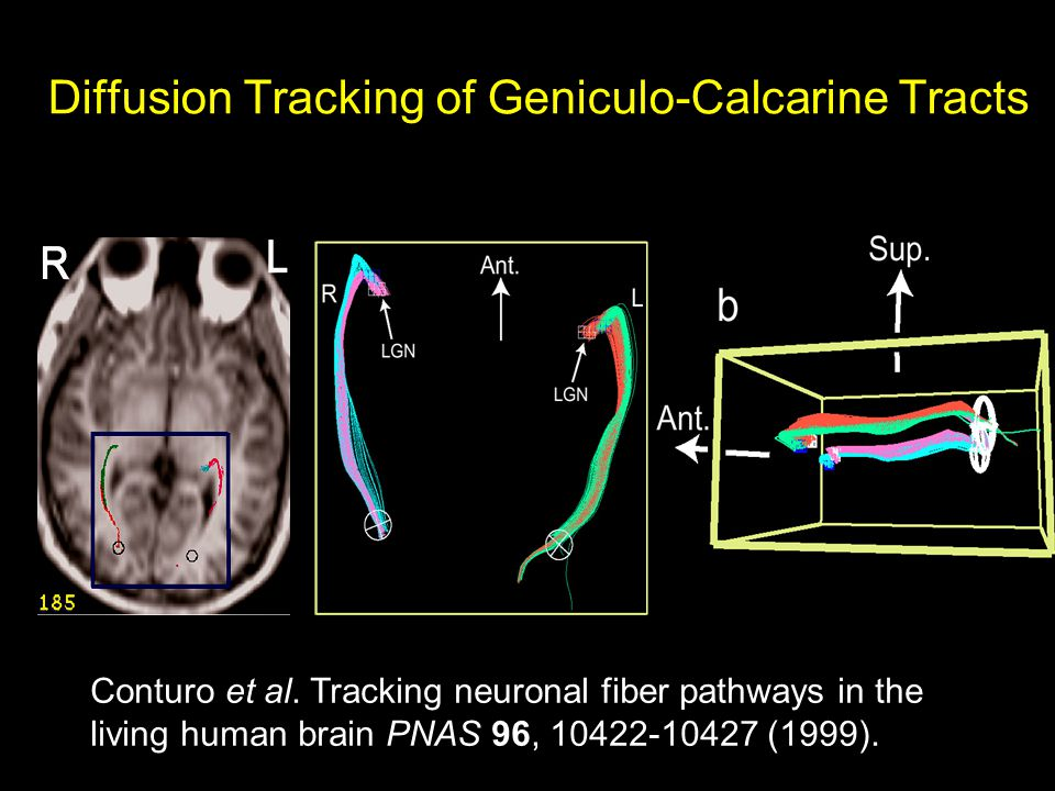 Diffusion Tracking of Geniculo-Calcarine Tracts Conturo et al.