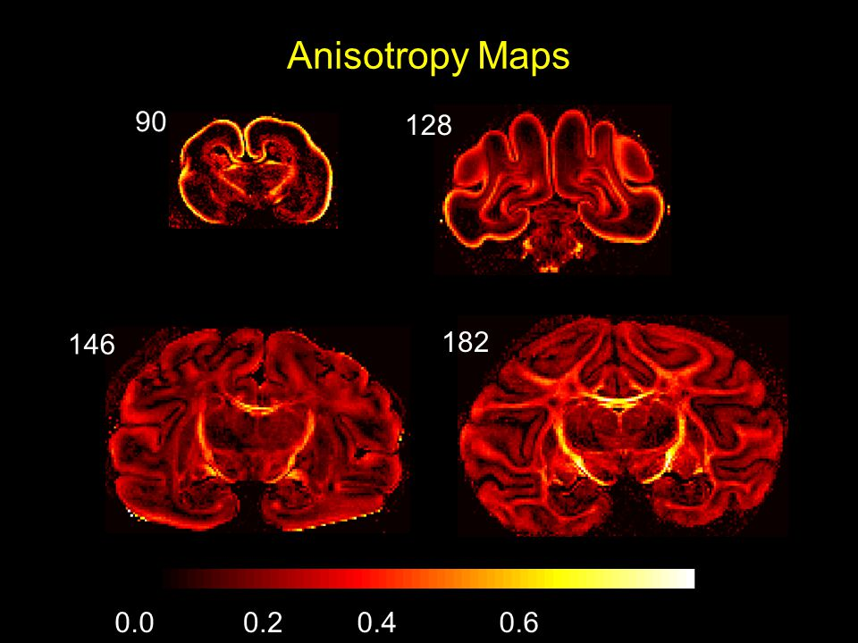 Anisotropy Maps 90 128 146 182 0.00.20.40.6