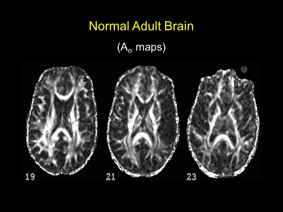 Diffusion Tensor Imaging ( A  ) Normal Adult Brain (A  maps)