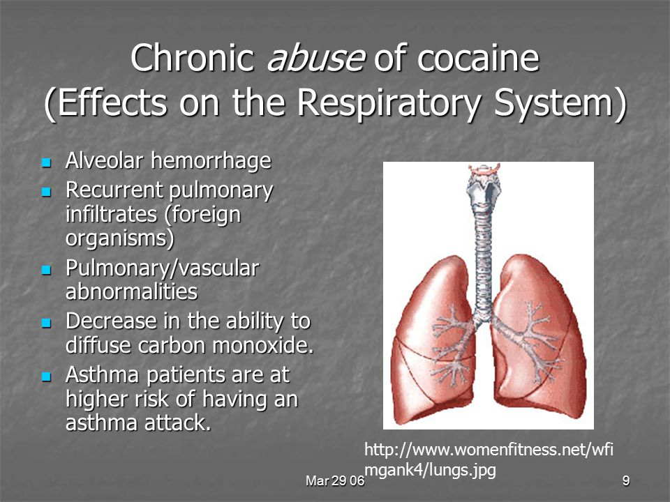 Mar 29 069 Chronic abuse of cocaine (Effects on the Respiratory System) Alveolar hemorrhage Alveolar hemorrhage Recurrent pulmonary infiltrates (foreign organisms) Recurrent pulmonary infiltrates (foreign organisms) Pulmonary/vascular abnormalities Pulmonary/vascular abnormalities Decrease in the ability to diffuse carbon monoxide.