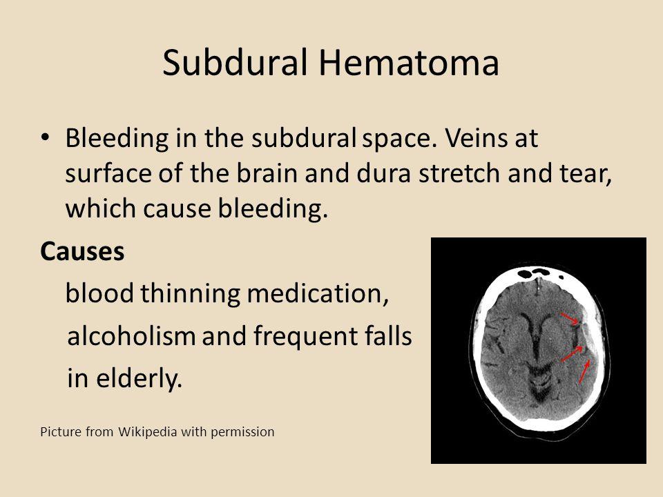 Subdural Hematoma Bleeding in the subdural space.