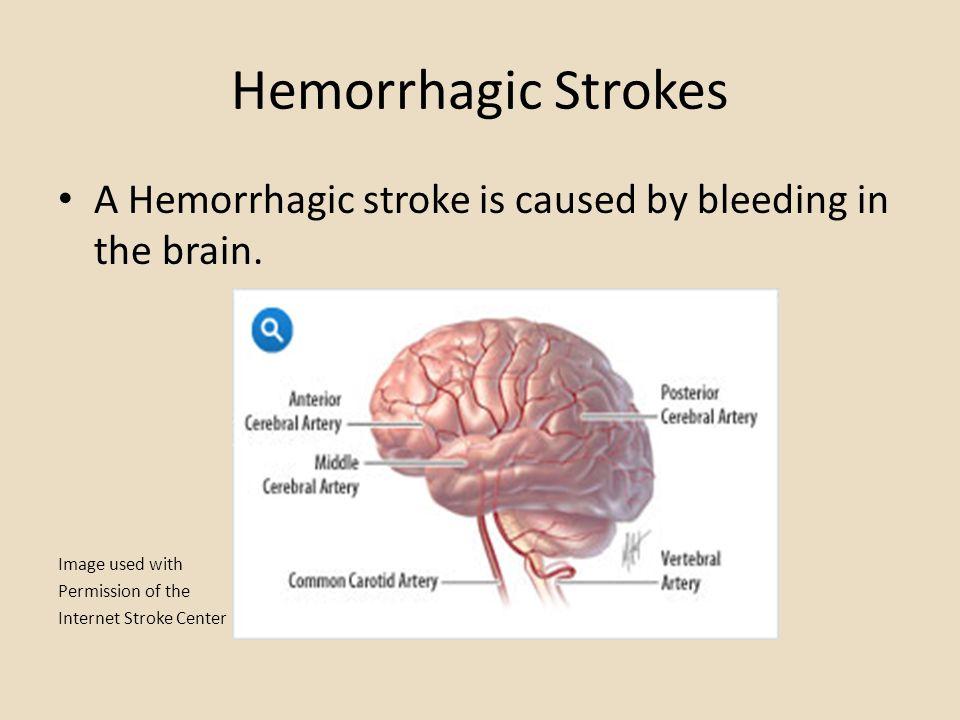 Hemorrhagic Strokes A Hemorrhagic stroke is caused by bleeding in the brain.