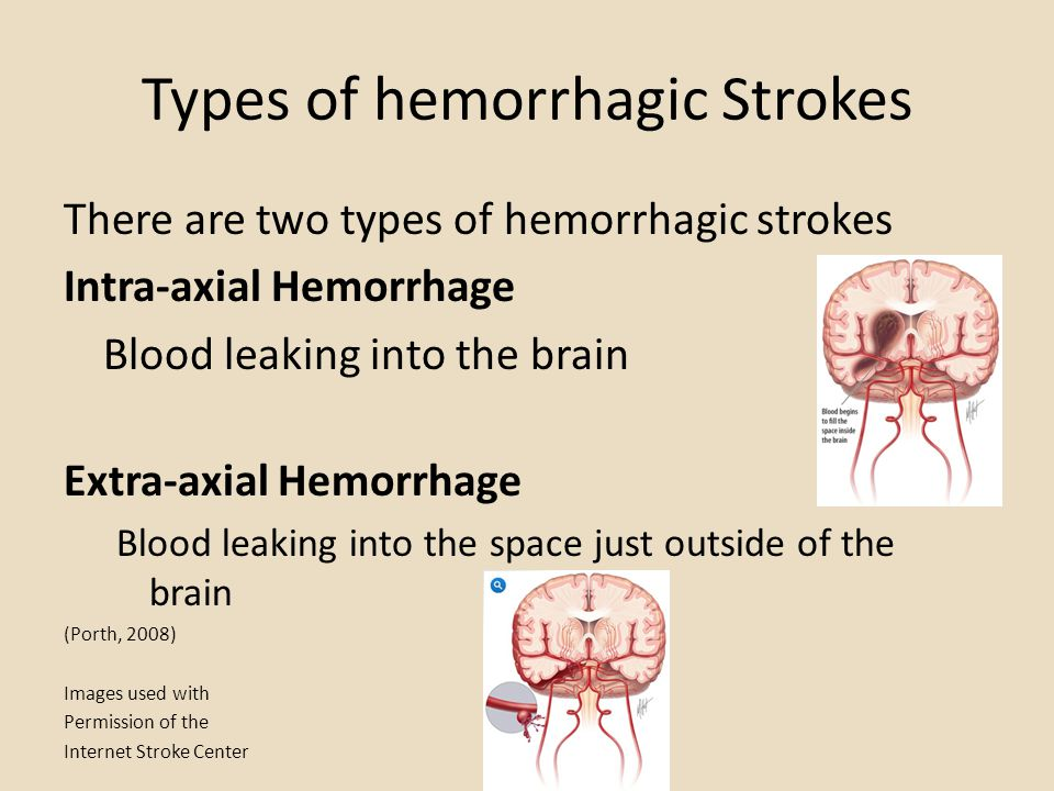 Types of hemorrhagic Strokes There are two types of hemorrhagic strokes Intra-axial Hemorrhage Blood leaking into the brain Extra-axial Hemorrhage Blo