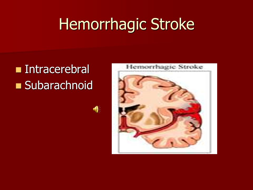 Types of Stroke Cerebral Vascular Accident Cerebral Vascular Accident –Ischemic –Clot or plaque Transient Ischemic Attack Transient Ischemic Attack –Clot or plaque causes cerebral ischemia causing stroke-like symptoms –Resolves quickly in less than 24 hours without intervention –CT/MRI will be negative