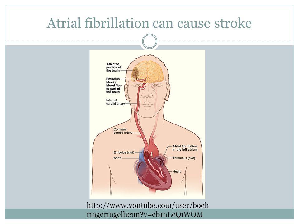 Atrial fibrillation can cause stroke http://www.youtube.com/user/boeh ringeringelheim v=eb1nLeQiWOM