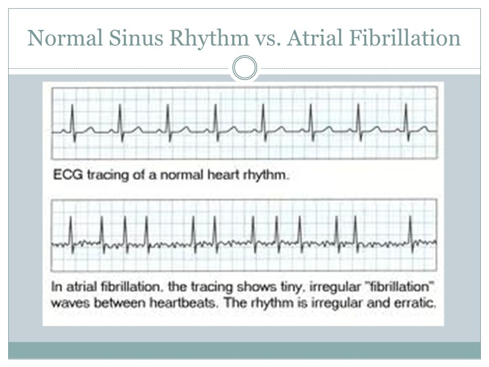 Normal Sinus Rhythm vs. Atrial Fibrillation