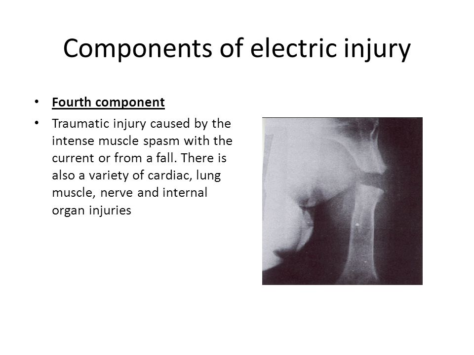 Components of electric injury Fourth component Traumatic injury caused by the intense muscle spasm with the current or from a fall. There is also a va
