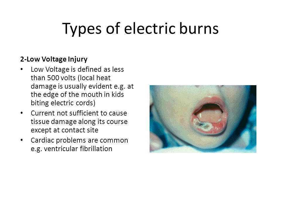 Types of electric burns 2-Low Voltage Injury Low Voltage is defined as less than 500 volts (local heat damage is usually evident e.g. at the edge of t