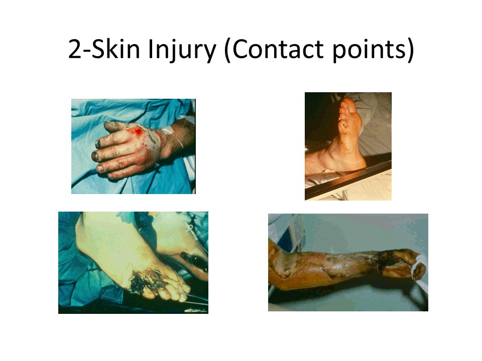 2-Skin Injury (Contact points)