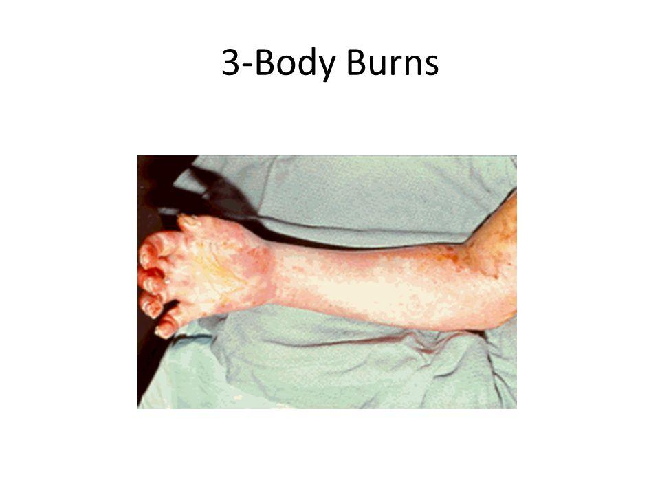 3-Body Burns