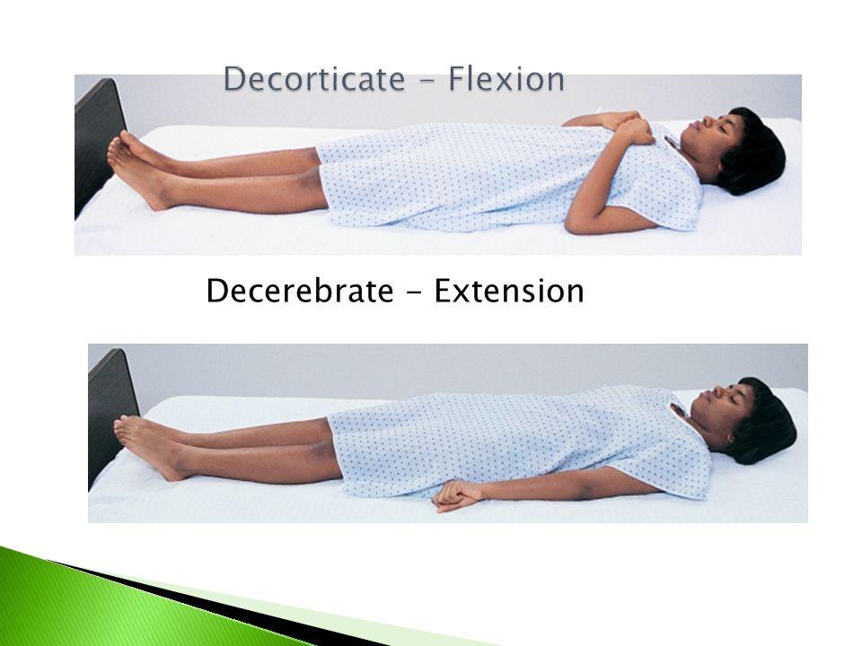 Decerebrate - Extension