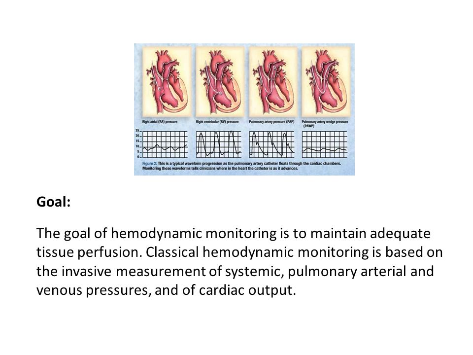 Goal: The goal of hemodynamic monitoring is to maintain adequate tissue perfusion. Classical hemodynamic monitoring is based on the invasive measureme