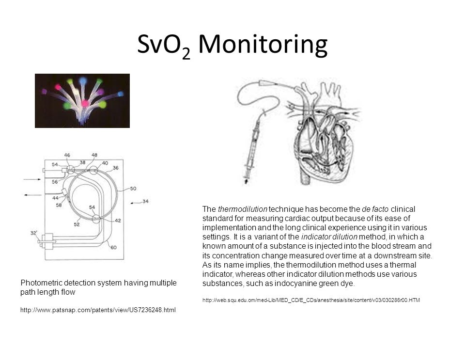 SvO 2 Monitoring Photometric detection system having multiple path length flow http://www.patsnap.com/patents/view/US7236248.html The thermodilution t