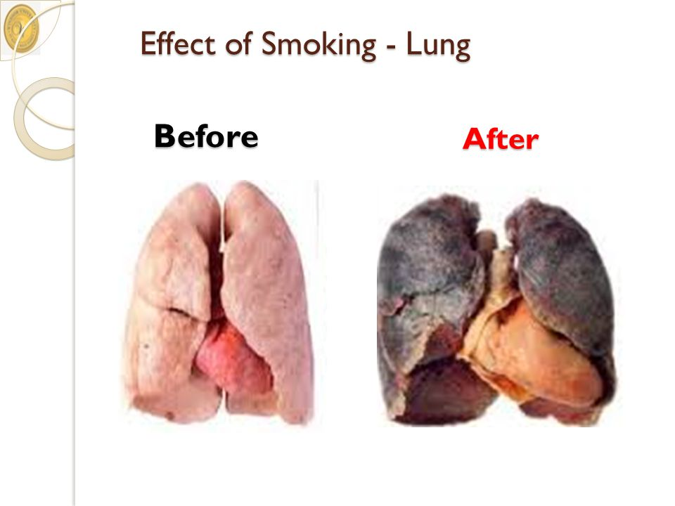 Effect of Smoking - Lung Before After