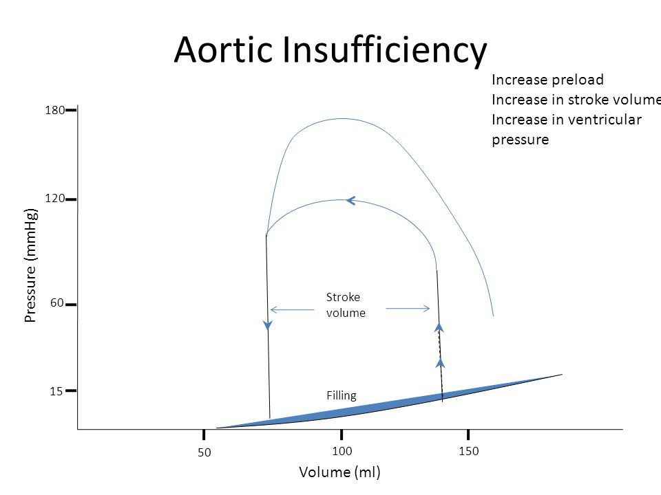 Aortic Insufficiency Filling Stroke volume Volume (ml) Pressure (mmHg) 50 100150 15 180 120 60 Increase preload Increase in stroke volume Increase in