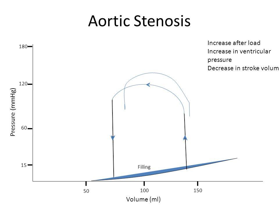 Aortic Stenosis Filling Volume (ml) Pressure (mmHg) 50 100150 15 180 120 60 Increase after load Increase in ventricular pressure Decrease in stroke vo