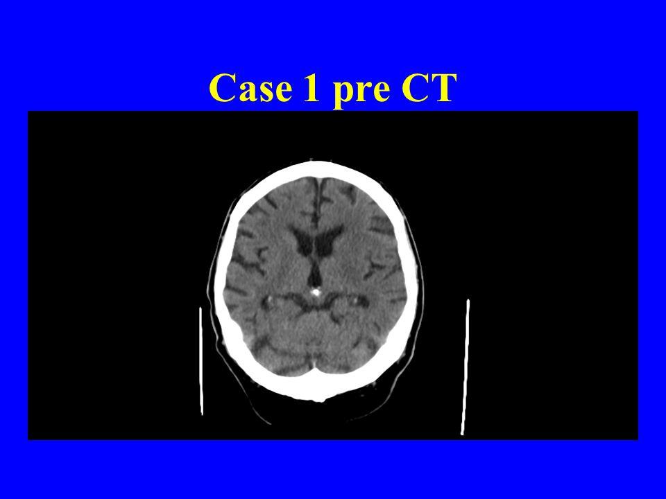 Case 1 pre CT