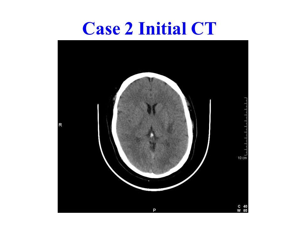 Case 2 Initial CT